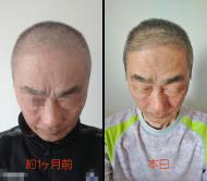 20190425_髪比較