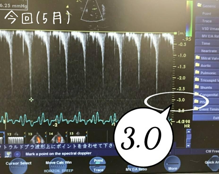 だるま心臓検査2回目11