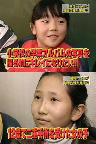 小学校の卒業アルバムの写真を撮る前に綺麗になりたい」と言って整形する韓国の子供たち