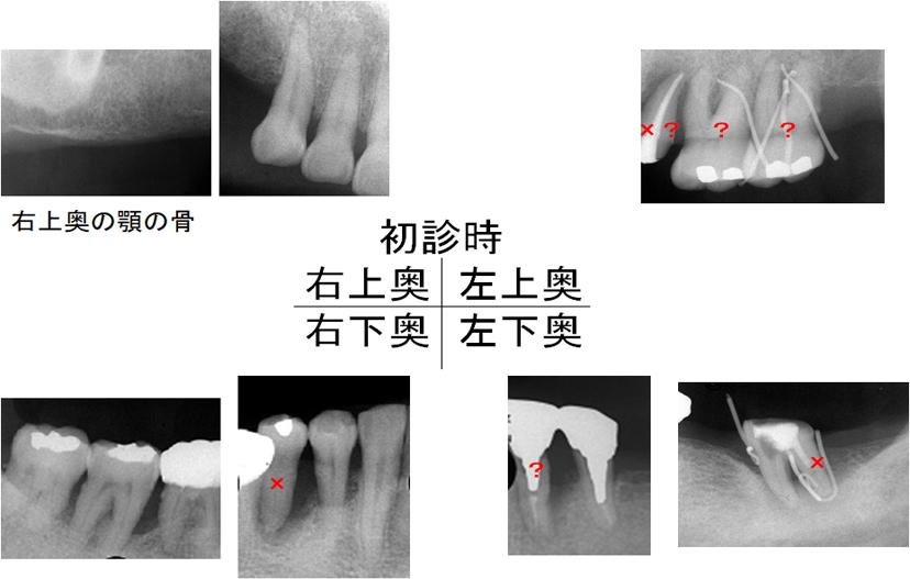 初診時上下左右臼歯部