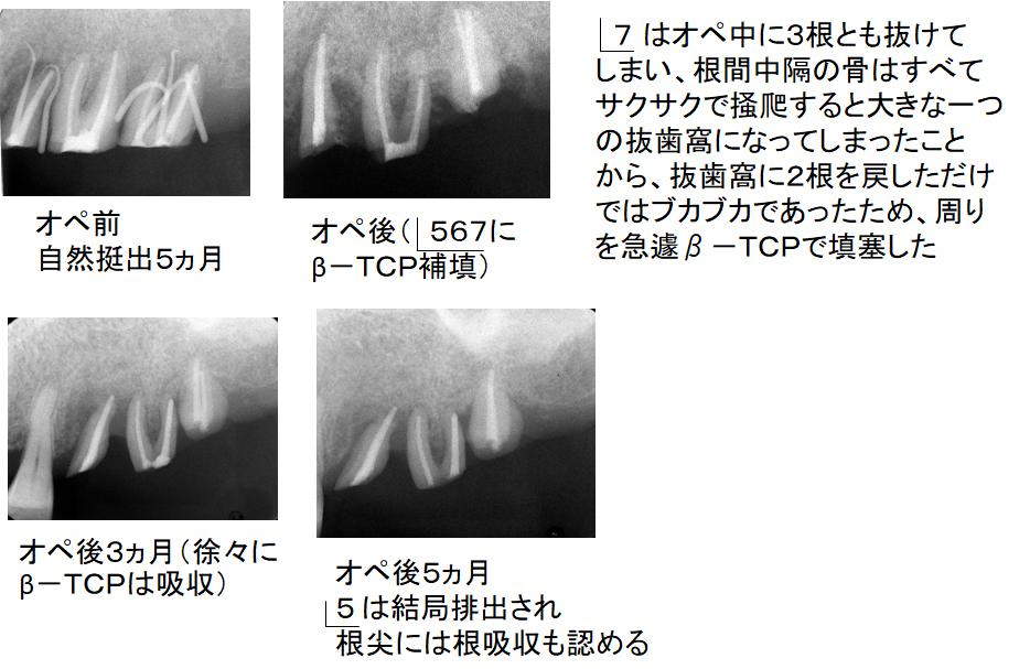 左上臼歯部の治療経過、続き