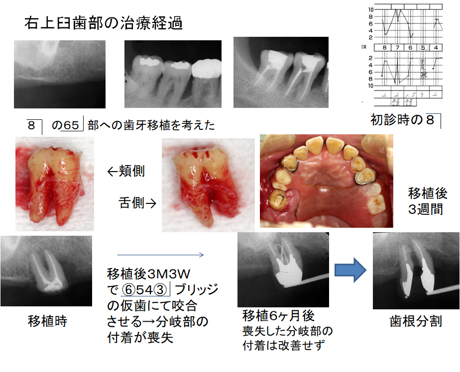 右上臼歯部の治療経過