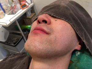 SK様の男メンズひげ脱毛BEFOREひげそり後2