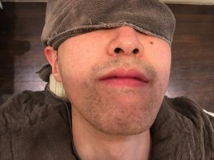 SK様の男メンズひげ脱毛BEFOREひげそりまえ3