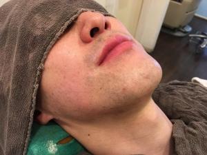 SK様の男メンズひげ脱毛BEFOREひげそり後