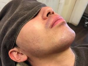 OM様男のひげ脱毛BEFORE (1)