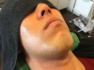 男のひげ脱毛KA様3回目終了後 (1)
