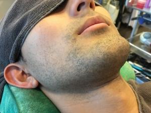 HR様のひげ脱毛BEFORE (3)