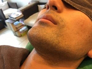 HR様のひげ脱毛BEFORE (1)