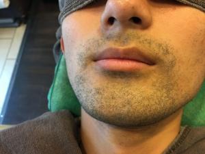 HR様のひげ脱毛BEFORE (2)