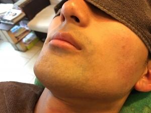 HR様のひげ脱毛BEFORE (4)
