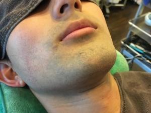 HR様のひげ脱毛BEFORE (6)