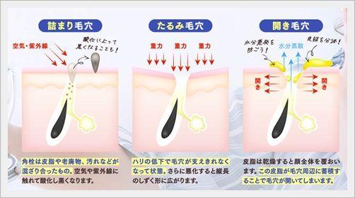 洗顔石鹸&サプリでWの毛穴対策ができる!ポツポツ・詰まり・黒ずみ・たるみ毛穴ケアに【クリスチュアル】効果・口コミ。